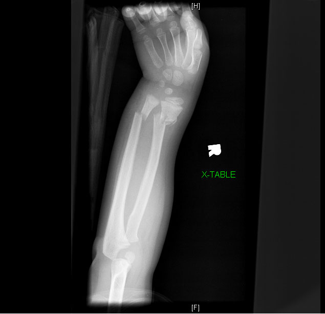 Common Forearm Fractures In Children Forearm Fracture Greenstick