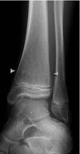 xray of a healed ankle fracture after screw removal