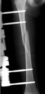 external fixator applied to a femur fracture