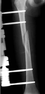 external fixator applied to a femur fracture