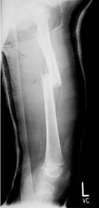 fractured femur with overlap of the ends of the bone