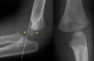 supracondylar fracture of the humerus