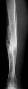 healing tibia fracture after external fixator removal