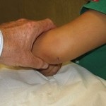 pediatric arm fracture